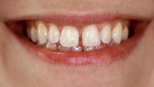 Lý do tại sao răng bị thưa và cách phục hình răng thưa hiệu quả 1