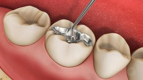 Trám răng sâu hay bọc răng sứ cho HIỆU QUẢ TỐT NHẤT, thưa bác sỹ 1