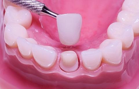 Trám răng sâu hay bọc răng sứ cho HIỆU QUẢ TỐT NHẤT, thưa bác sỹ 2
