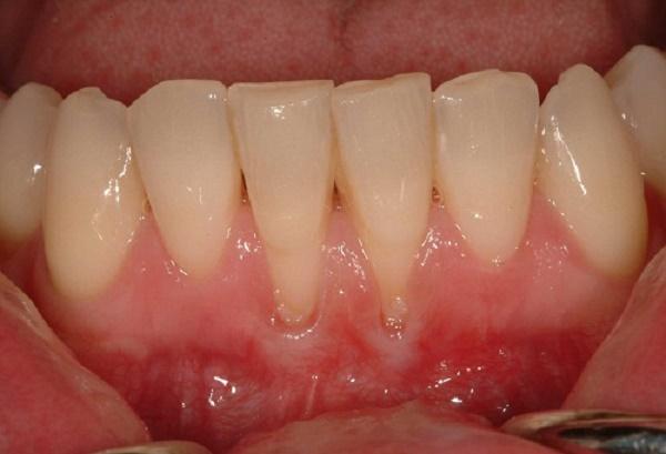 Hiện tượng bị tụt lợi chân răng và những cách điều trị hiệu quả