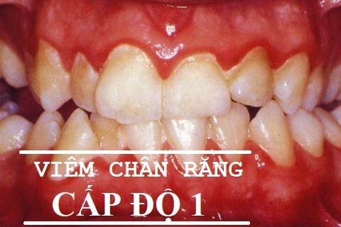Điều trị viêm chân răng hàm HIỆU QUẢ với BÍ QUYẾT sau 1