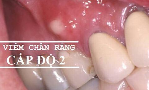 Điều trị viêm chân răng hàm HIỆU QUẢ với BÍ QUYẾT sau 2