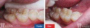 Sâu răng số 8 nên hàn trám khắc phục hay nhổ bỏ răng là TỐT? 2