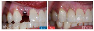 Làm răng ở đâu tốt, UY TÍN và ĐẢM BẢO CHẤT LƯỢNG hiện nay 4