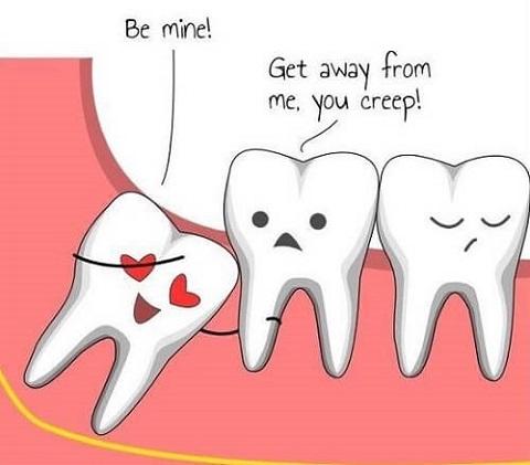 Bà bầu mọc răng khôn không có ý nghĩa gì đặc biệt, ngược lại còn rất phiền toái