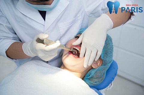 Nhổ răng tại nha khoa Paris cho bà bầu mọc răng khôn