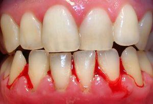 Nguyên nhân chảy máu chân răng và cách điều trị cụ thể
