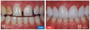 Làm răng ở đâu tốt, UY TÍN và ĐẢM BẢO CHẤT LƯỢNG hiện nay 3