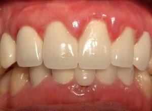 Điều trị viêm chân răng hàm theo từng cấp độ đạt HIỆU QUẢ tốt nhất