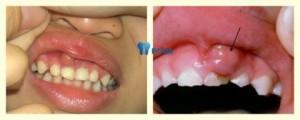 Cách điều trị viêm chân răng có mủ HIỆU QUẢ ngay tại nhà 2