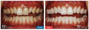 Làm răng ở đâu tốt, UY TÍN và ĐẢM BẢO CHẤT LƯỢNG hiện nay 2
