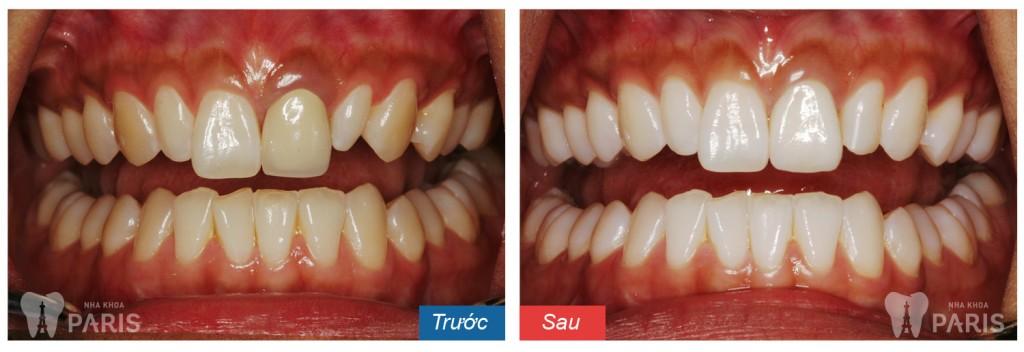 Nguyên nhân gây hôi miệng xuất phát do đâu và cách điều trị hiệu quả nhất 2