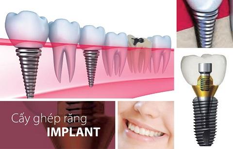 Cấy implant ở đâu uy tín nhất