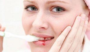 Tìm hiểu cách điều trị chảy máu chân răng HIỆU QUẢ NHANH CHÓNG