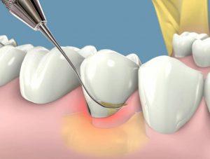 Cạo vôi răng khi mang thai có ảnh hưởng tới sự phát triển của trẻ 2