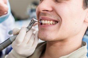 [Giải đáp] Lấy cao răng có đau không và tại sao lại bị đau?