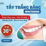 Cực hấp dẫn mức giá tẩy trắng răng tại nha khoa Paris 2018