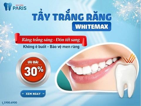 Giá tẩy trắng răng ưu đãi tại nha khoa Paris