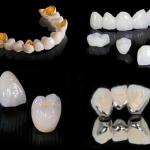 Chuyên gia chia sẻ cách xác định giá trồng răng sứ CHUẨN NHẤT
