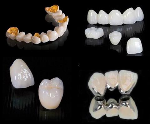 Giá trồng răng sứ xác định như thế nào