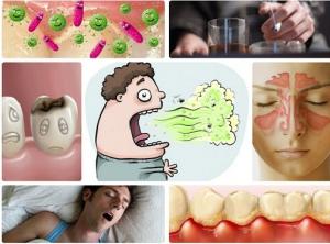 Vì sao bị hôi miệng và cách chữa trị HIỆU QUẢ VĨNH VIỄN 1