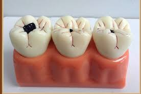 Mách bạn cách chữa sâu răng hàm TRIỆT ĐỂ tận gốc 100% 1