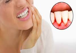 Tìm hiểu chi tiết nguyên nhân chảy máu chân răng - Bệnh lý răng miệng nguy hiểm 1