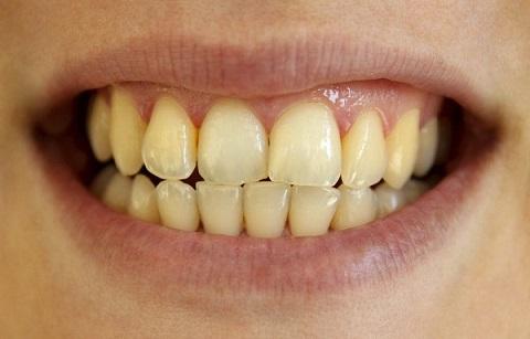 Răng ố vàng có nên tẩy trắng răng không