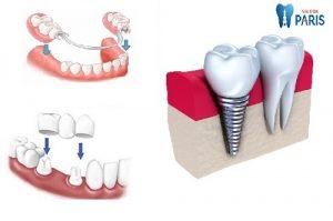 Tư vấn trồng răng giả loại nào tốt mà bền đẹp nhất hiện nay 1