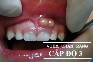 Chữa trị viêm chân răng hàm HIỆU QUẢ TRIỆT ĐỂ VĨNH VIỄN 3