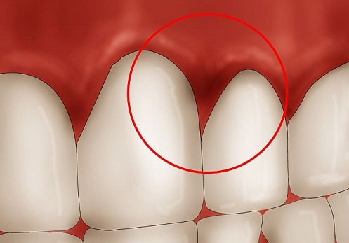 Nhiễm trùng nướu răng - Nguyên nhân & cách chữa dứt điểm 1