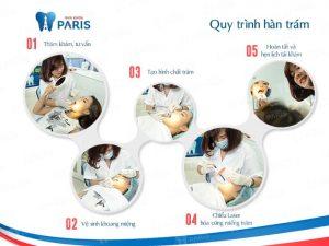 Các bước hàn răng sâu chuẩn quốc tế tại Nha khoa Paris 2