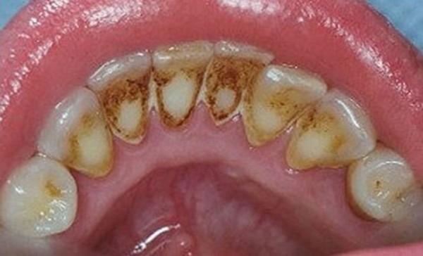 Nguyên nhân tại sao răng bị ố và cách làm trắng răng bị ố vàng đơn giản hiệu quả 2