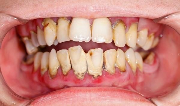 Chia sẻ những cách lấy cao răng tại nhà hiệu quả