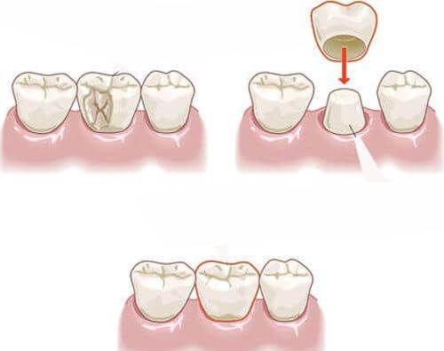 Bệnh lý sâu răng nguyên nhân và cách điều trị triệt để 2
