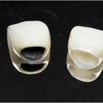 Bọc răng sứ giá bao nhiêu là CHÍNH XÁC NHẤT 2018