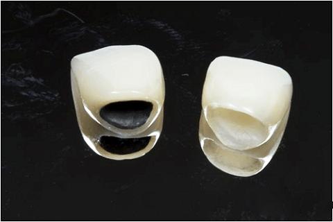 Bọc răng sứ giá bao nhiêu là CHÍNH XÁC NHẤT 2018 1