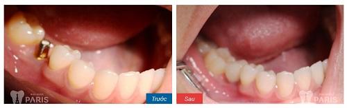 Cắm răng Implant ở đâu đẹp nhất 3