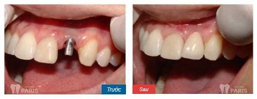 Cắm răng Implant ở đâu đẹp nhất 4