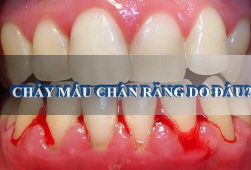 Chảy máu chân răng – Những nguy hại và cách điều trị hiệu quả