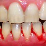 Cách khắc phục tình trạng chảy máu chân răng khi ngủ dậy