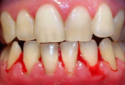 Chảy máu chân răng là dấu hiệu bệnh nguy hiểm về răng miệng
