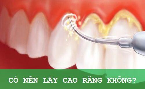 [Tổng hợp] Những cách lấy cao răng tại nhà hiệu quả 1