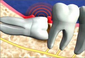 Cách KHẮC PHỤC răng khôn bị đau hiệu quả