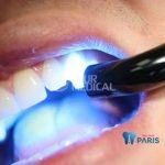 Bí mật cách hàn răng sâu KHÔNG ĐAU tại Nha Khoa Paris