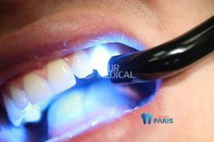 bài thuốc chữa đau răng từ lá bàng