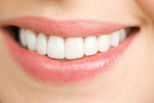 Lấy cao răng có tốt không có nên lấy thường xuyên không