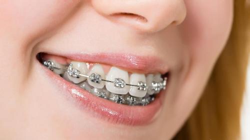 Làm sao để chỉnh răng thưa sao cho Đều và Đẹp? 1