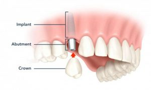 [Giải đáp thắc mắc] Chi phí làm răng giả giá bao nhiêu là CHUẨN?