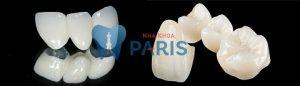 Răng sứ loại nào TỐT NHẤT – BỀN NHẤT – HỢP LÝ NHẤT